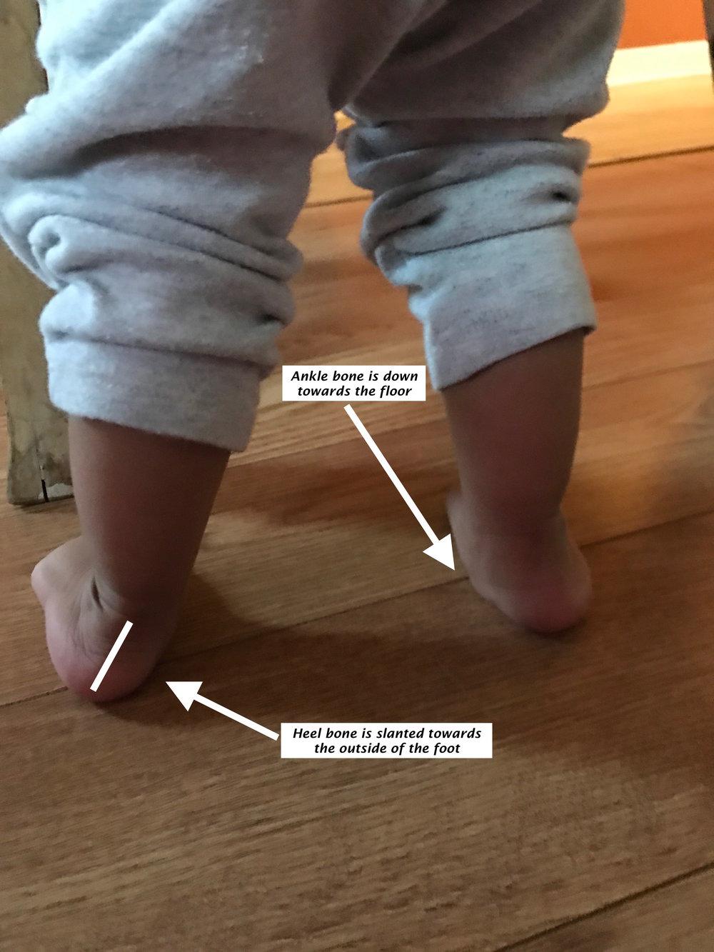 Weakness in the feet of children 45