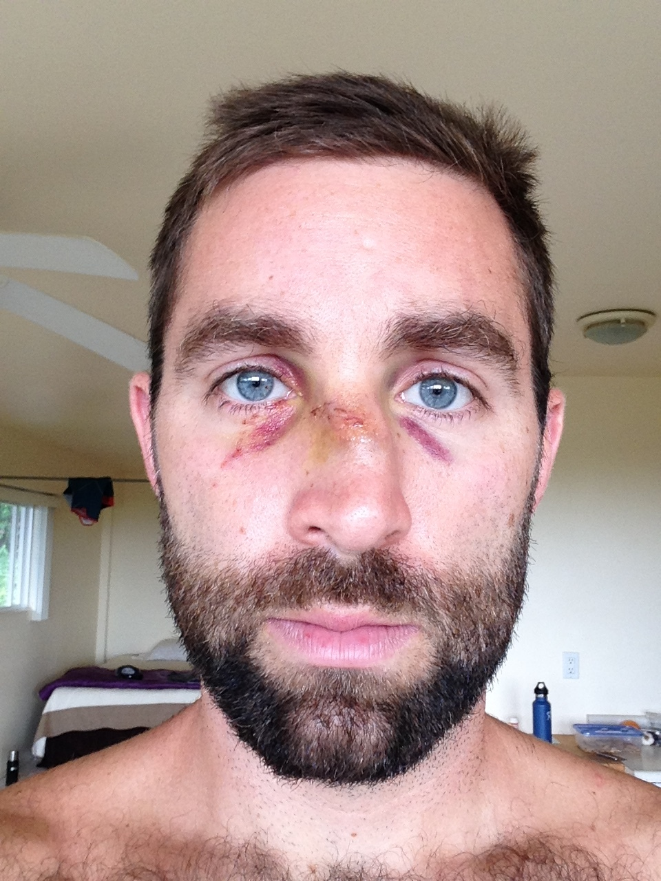 My broken nose from paddling on Maui