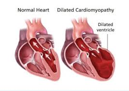 Images of a normal dog heart and one with Dilated Cardiomyopathy (DCM)