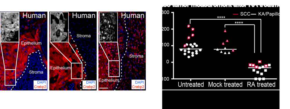 On the left. The Retinoic Acid (RA) pathway is activated during the regression of the human begnin KA tumors as visualized by the nuclear localization of a RA component, Crabp2 (in red) in the IF stainings. On the right. RA treatment on both begnin and malignant tumors lead to tumor regression.