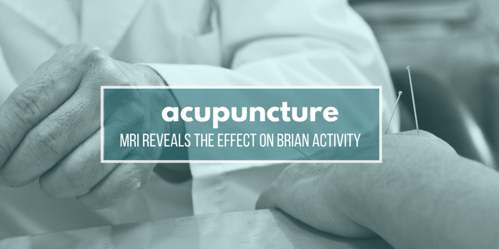 Acupuncture: MRI Reveals The Effect On Brain Activity