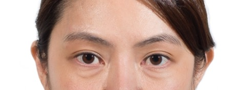 Remove eye bags and dark circles