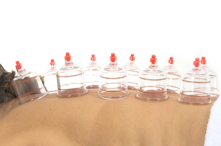 moving-cupping.jpg