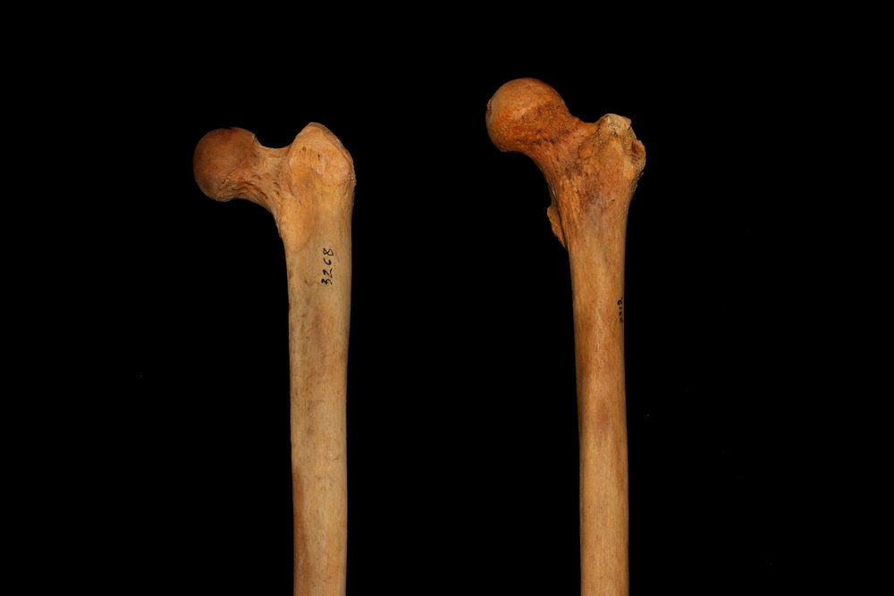 Femur_Inclination.jpg