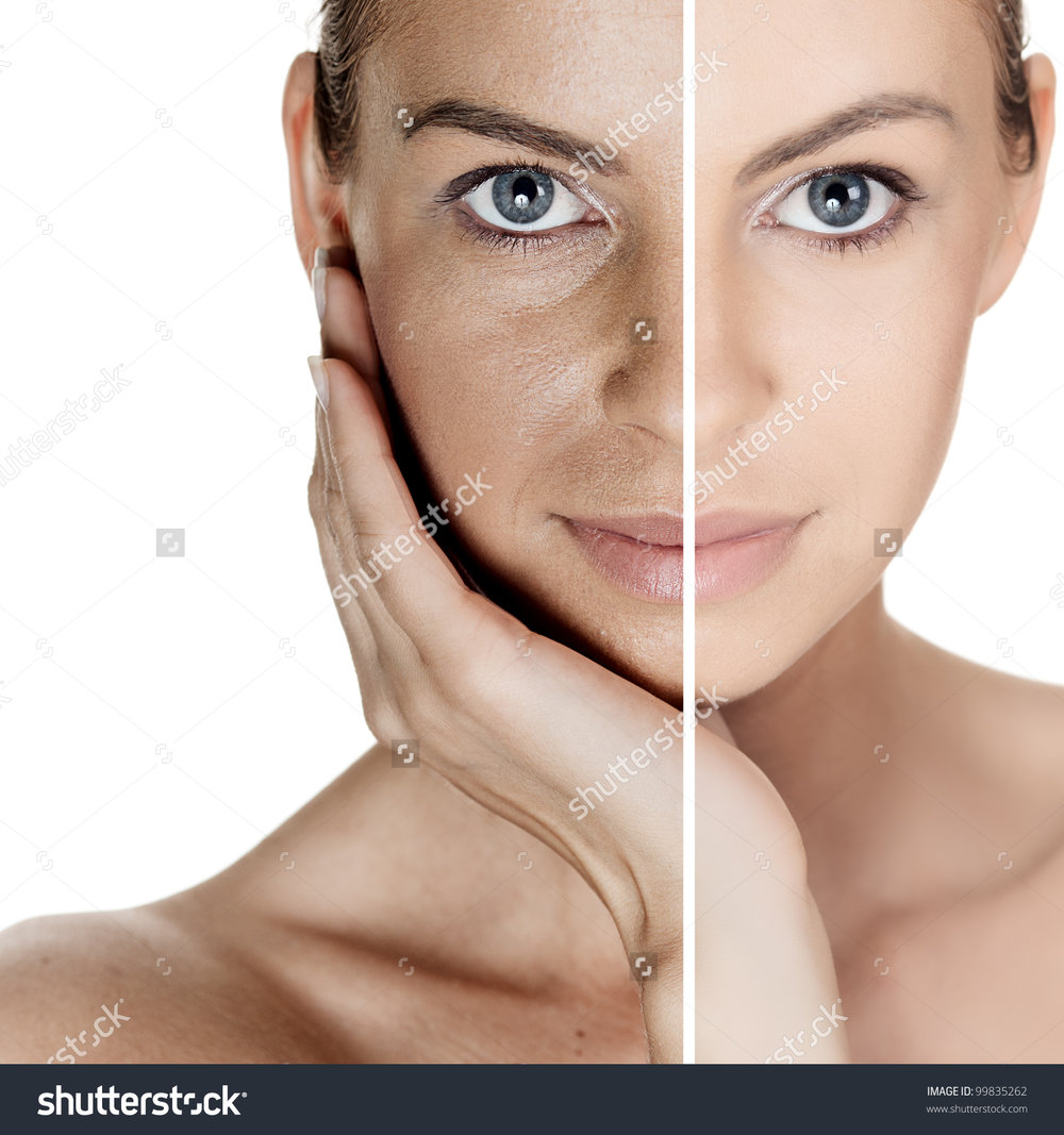 stock-photo-woman-with-spotty-skin-with-deep-pores-and-blackhead-and-healed-soft-skin-99835262.jpg