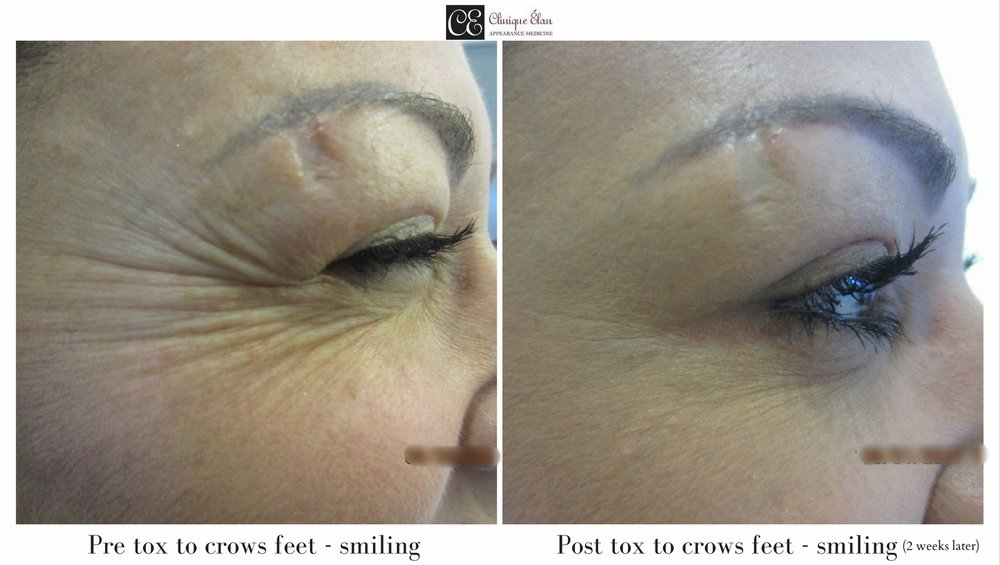 Pre-treatment to crows feet                                                                       2 weeks post-treatment