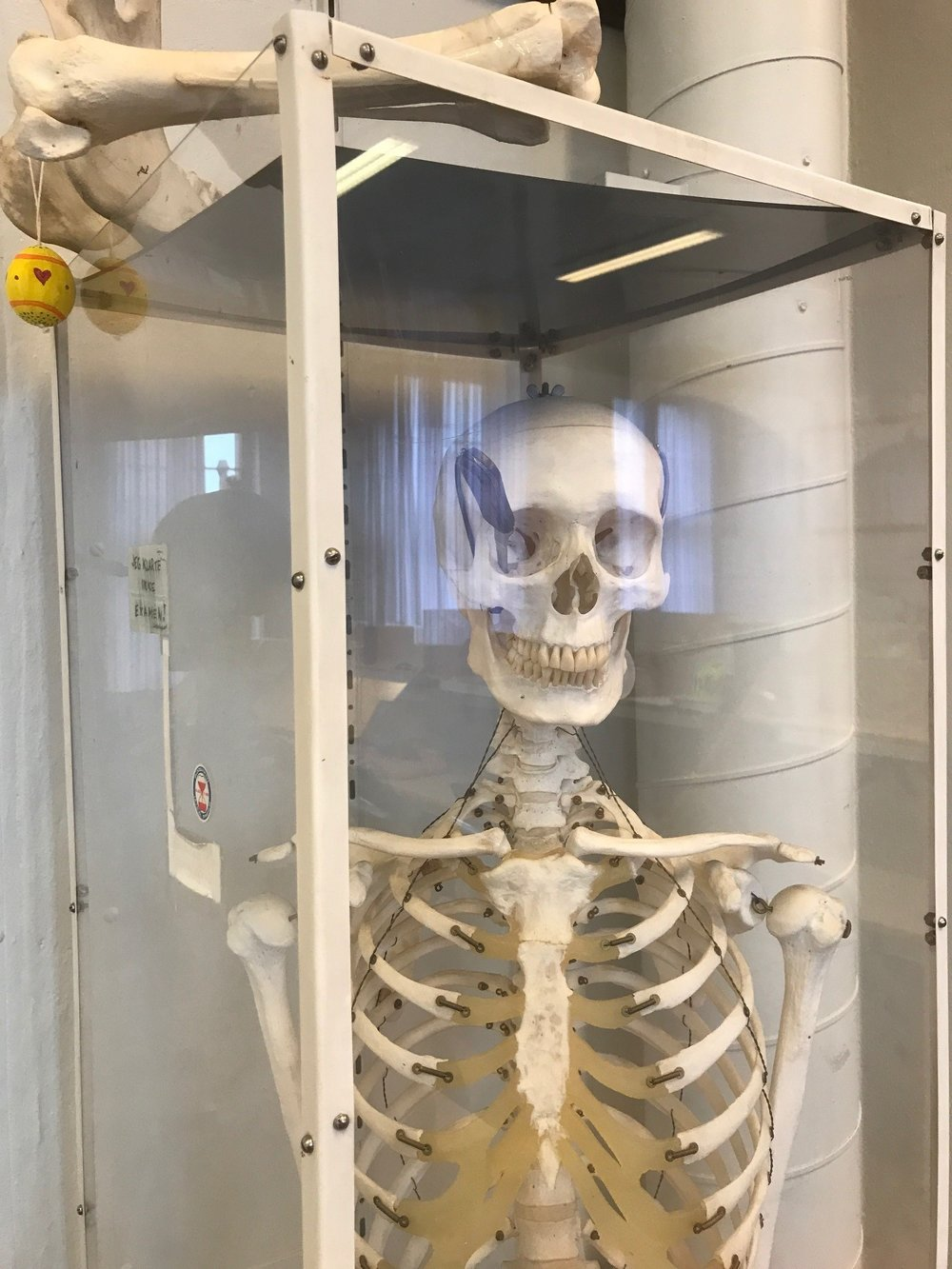 """Some of the decoration in the new study hall. The note on the side of the glass says """"I failed the exam"""", and he has a knife in his eye, so that bodes well for the second year!"""