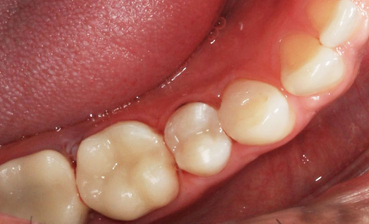 After: Replacement with Tooth-Covered Fillings