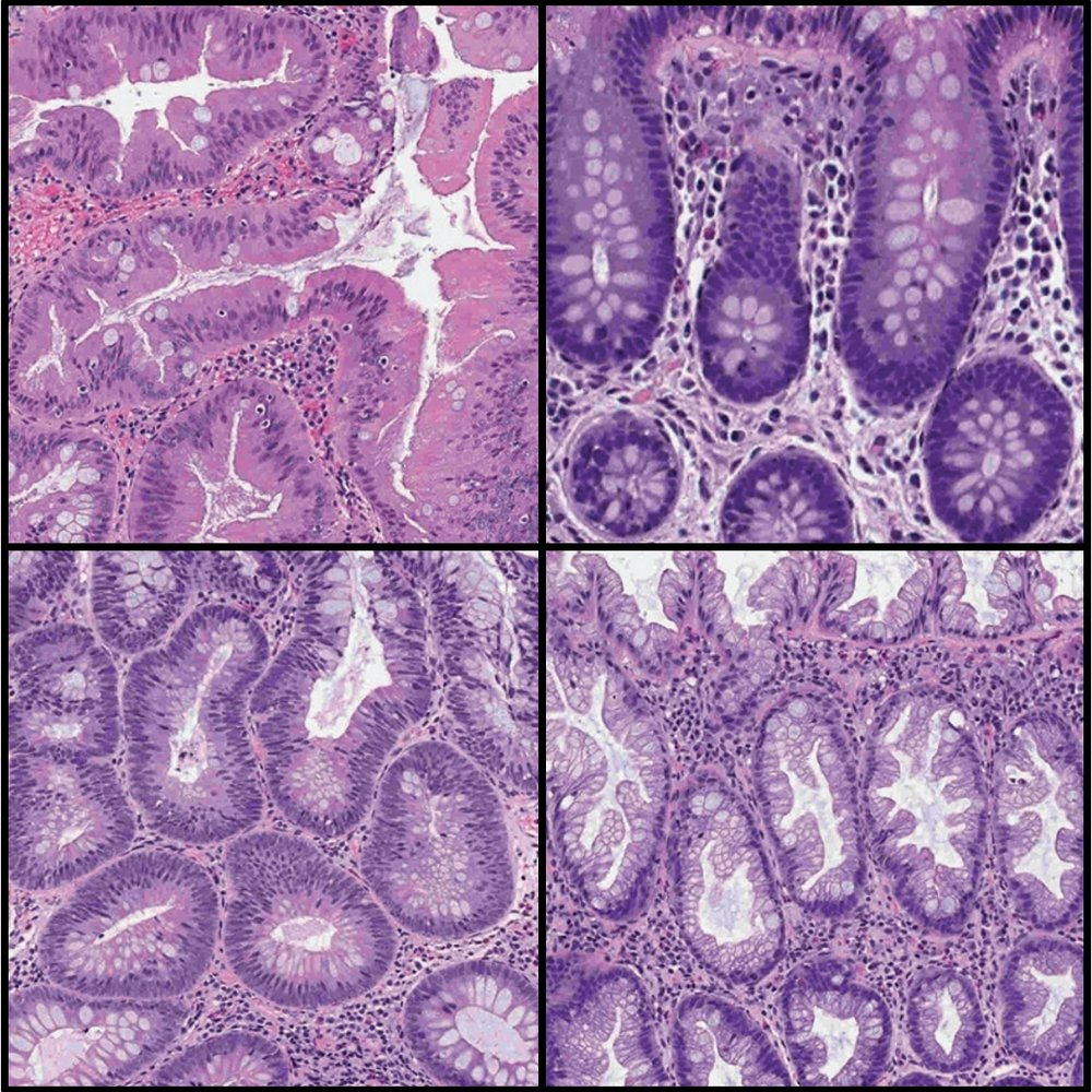 Colorectal Polyp Classification on Whole-Slide Images -