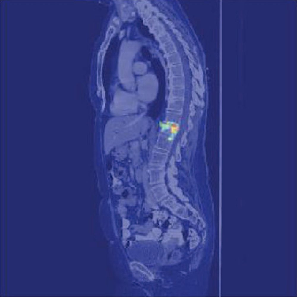 Osteoporotic Fracture Detection on CT Scans - [paper] [NVIDIA article]