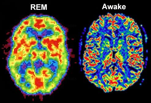 What sleep (recovery) looks like.