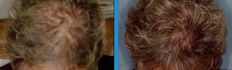 sunetics-ba-51-yrs-old-after-6-months.jpg