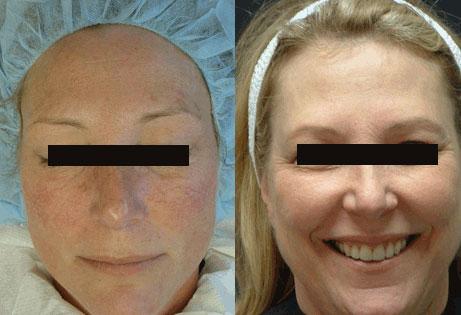 aura-acne-pre-post-3-fixed.jpg