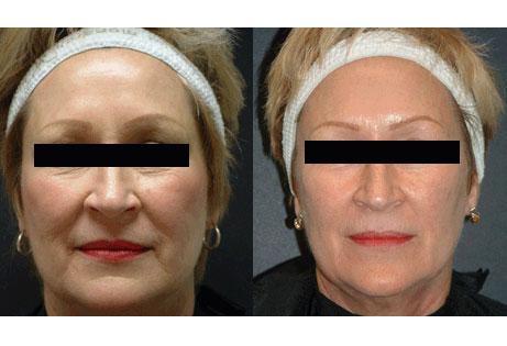 laser-skin-rejuvenation-botox-pre-post-fixed.jpg