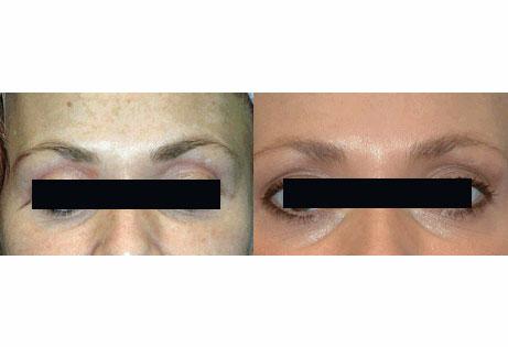 skin-rejuvenation-pre-post-fixed.jpg
