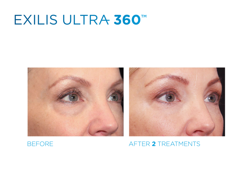 Exilis_Ultra_360_PIC_Fb-social-media-plan-170614_ENUS100.png