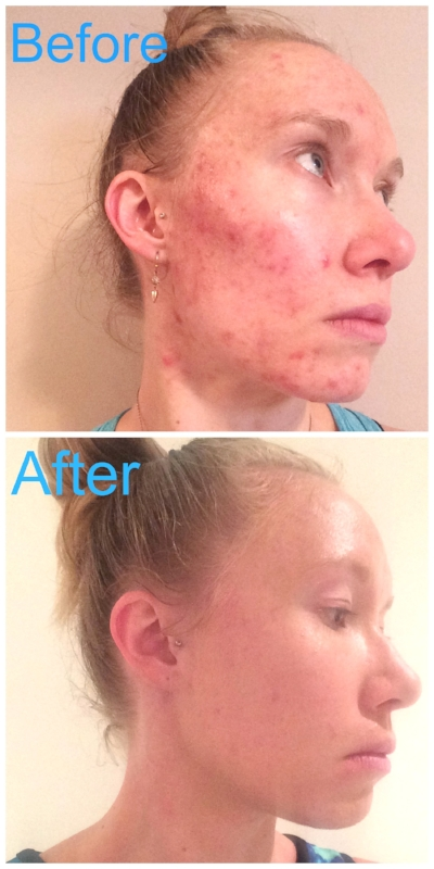 How I Healed My Adult Acne Naturally