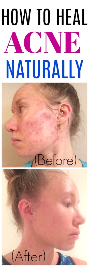 How To Heal Acne Naturally - Natural Acne Remedies - Heal Acne - Acne - Acne Treatment - Natural Acne Treatments - Natural Skincare