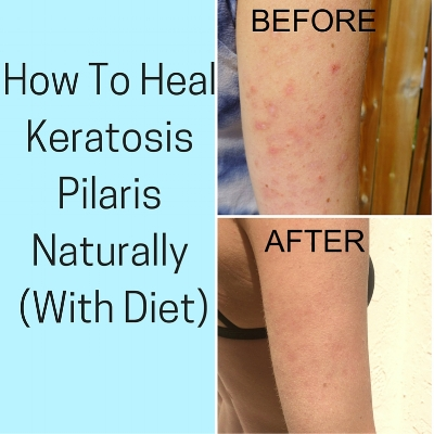 How To Heal Keratosis Pilaris With Diet