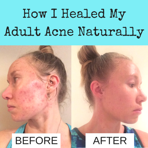 How I Healed My Acne Naturally