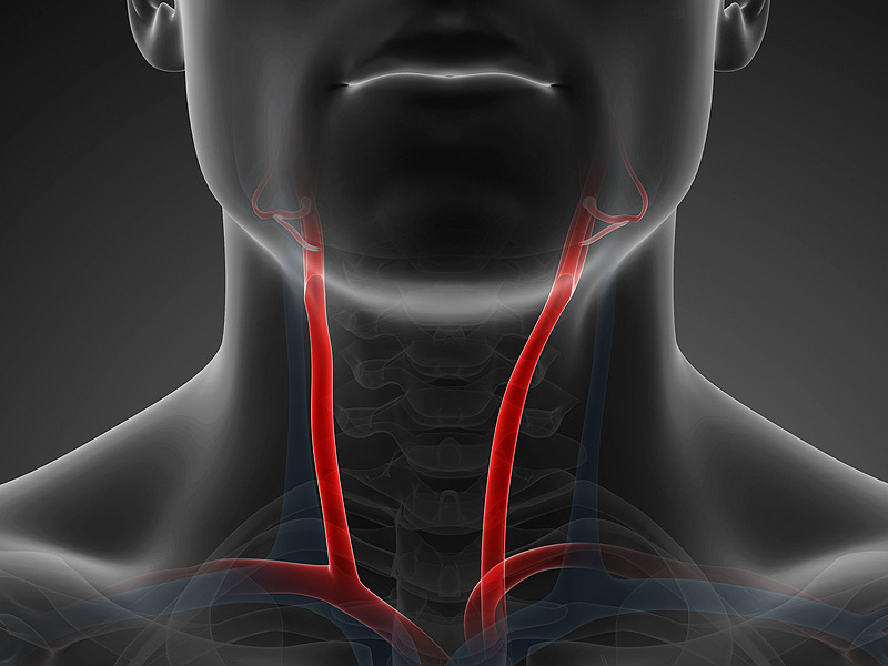 dt_150209_carotid_arteries_800x600.jpg