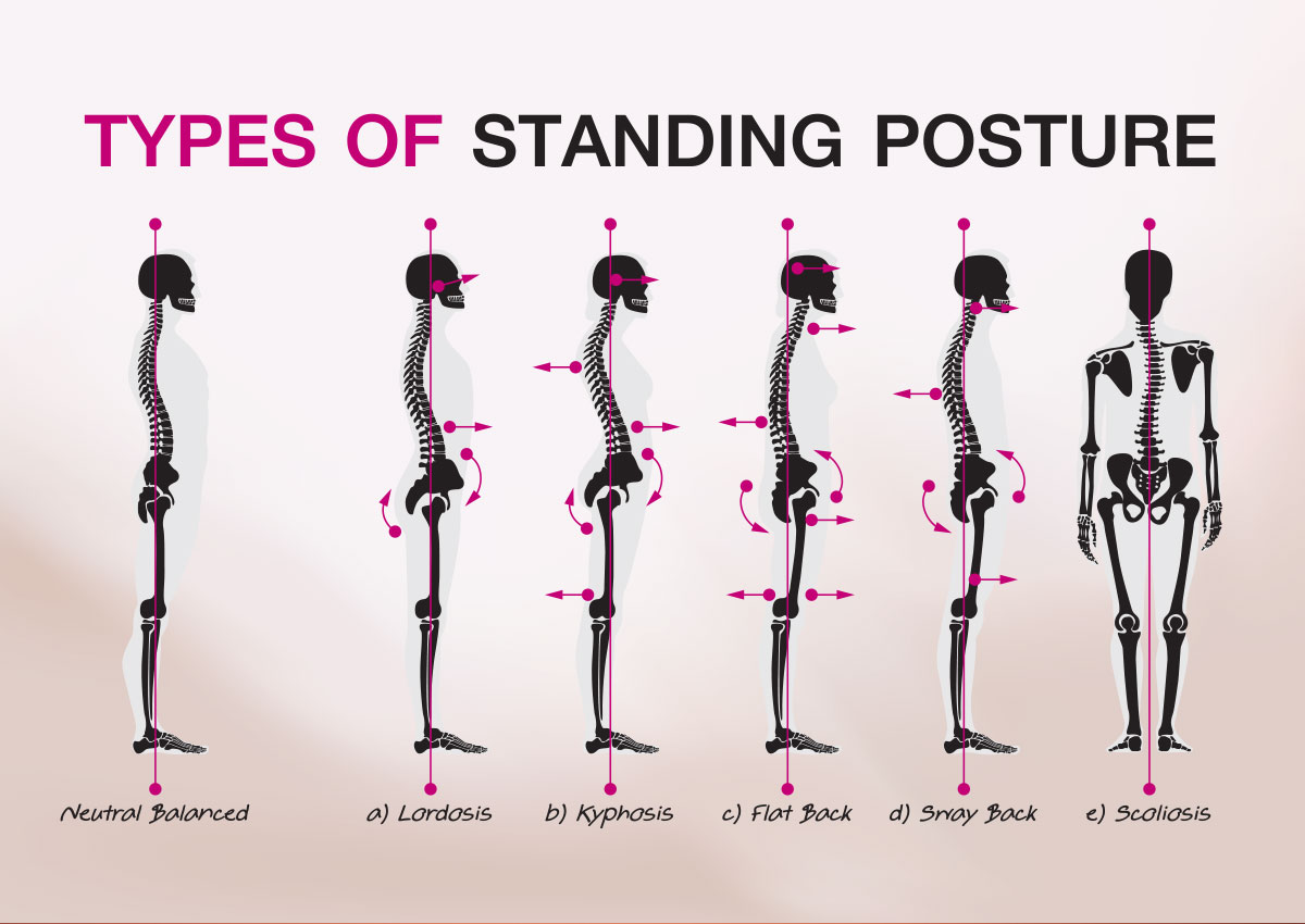 postural solutions for instability the alexander technique and hsd