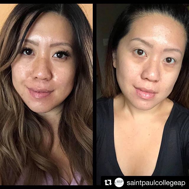 Bright and glowing skin is giving me all the feels ✨ ・・・ A breath taking before (left) and after (right) just after one lactic peel! @misslauraduvall @skinceuticals • #lacticpeel #saintpaulcollege #apesthetics #skincare #beauty #glow #mnesthetician #lauraduvallmakeupartistry #fresh #skin #lacticacid