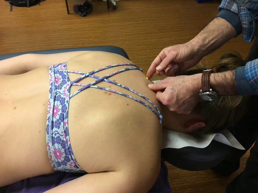 Finding acupuncture points on the upper back