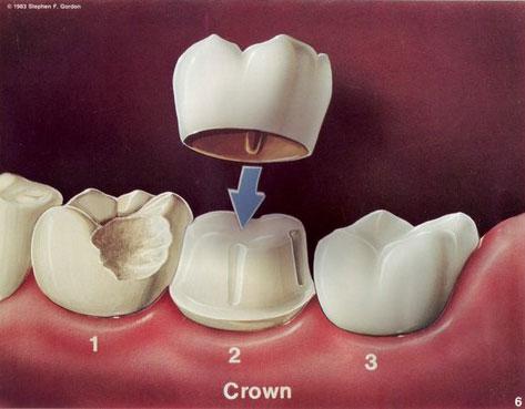 dentalcrown.jpg