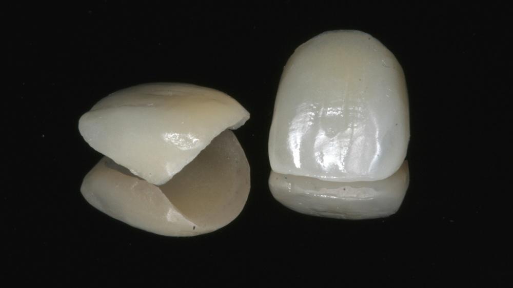 tooth_porcelain_veneers.jpg