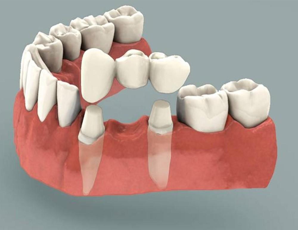 Dentalbridgemiami.jpg