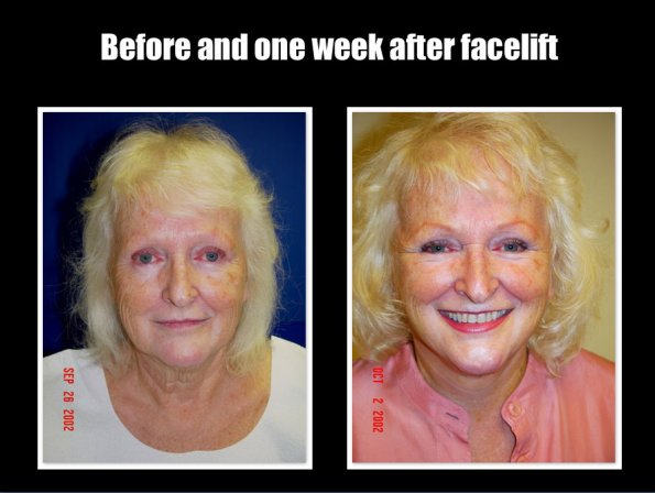 face-lift-2.jpg