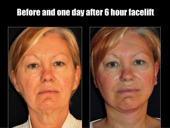 face-lift-5.jpg