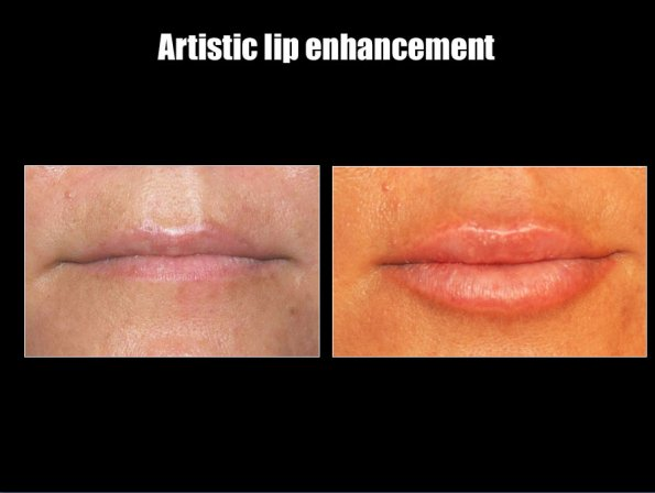 juv-lips-1.jpg