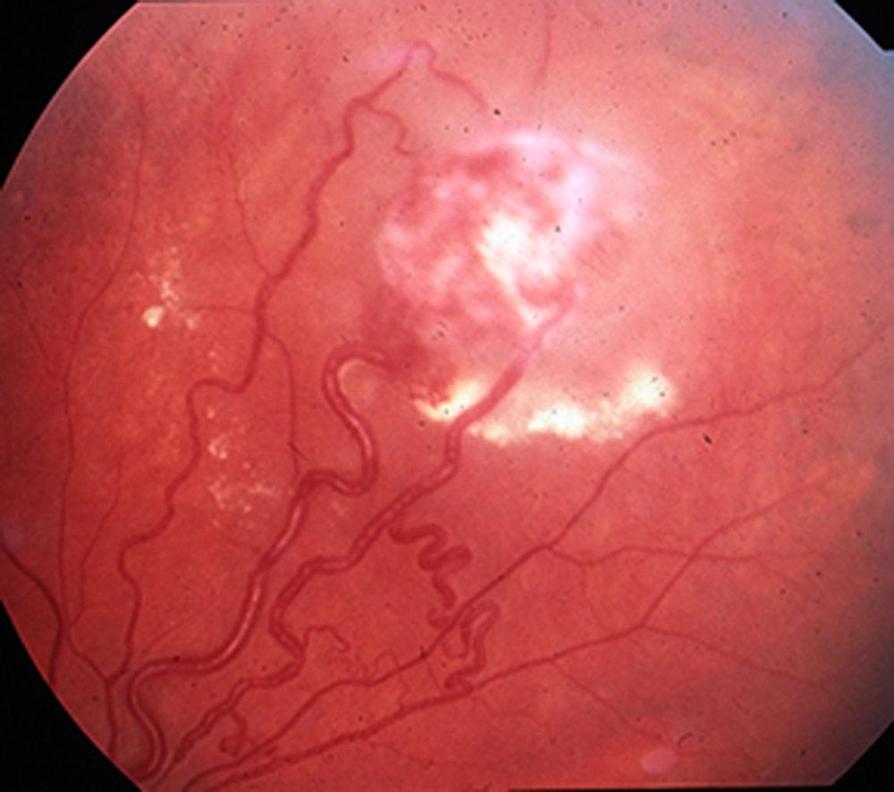 Retinal Angioma