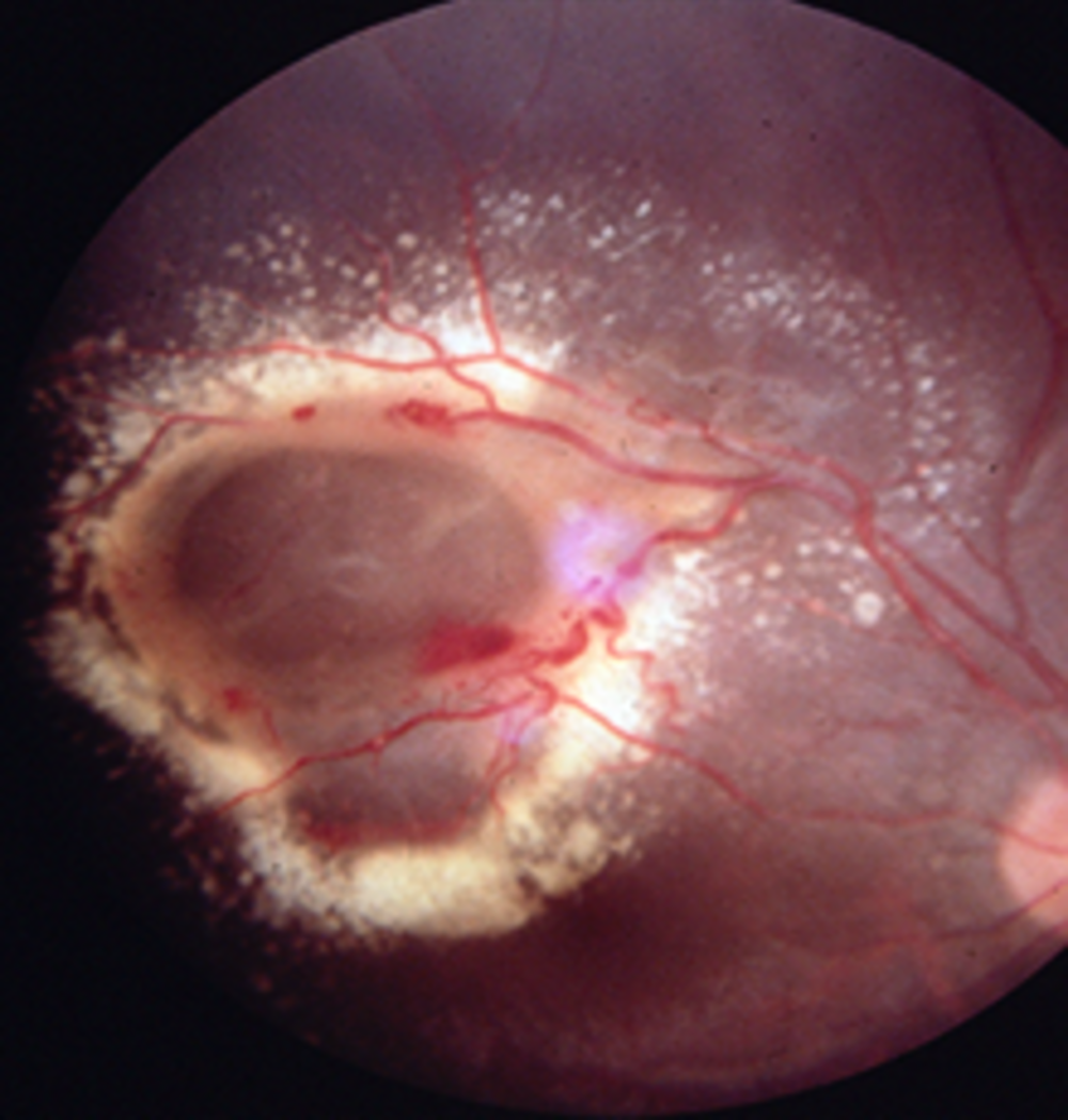 Coats' eye with ring of cholesterol and macular cyst