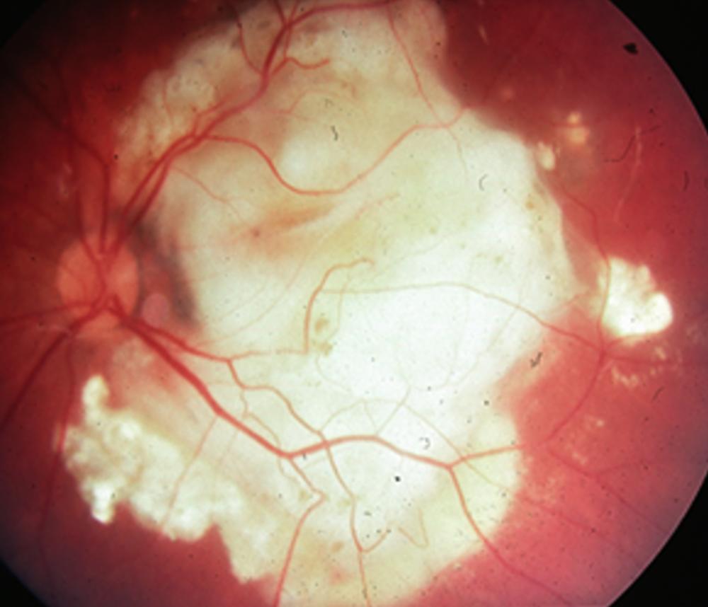 Coats' eye with fluid and cholesterol chunks under macula