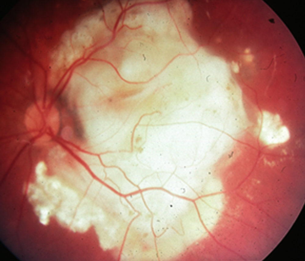 Coats' eye with fluid and cholesterol chunks under macula