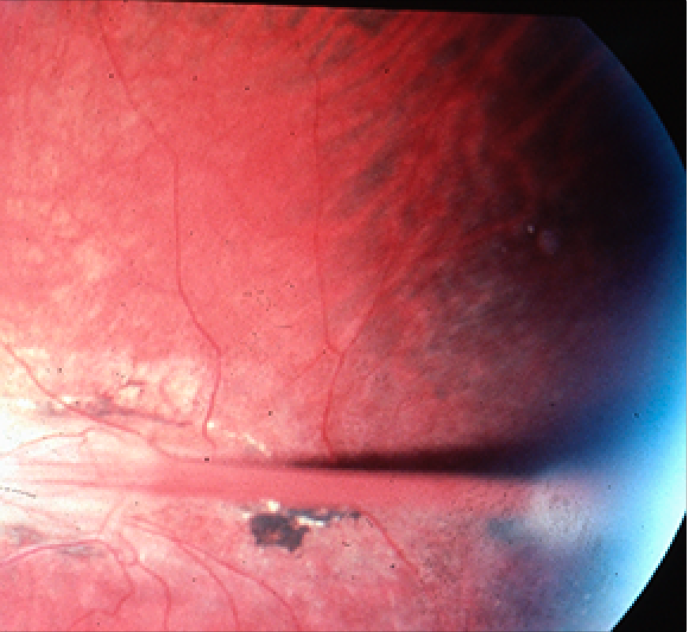 Retina abnormally folded into a tube due to ROP