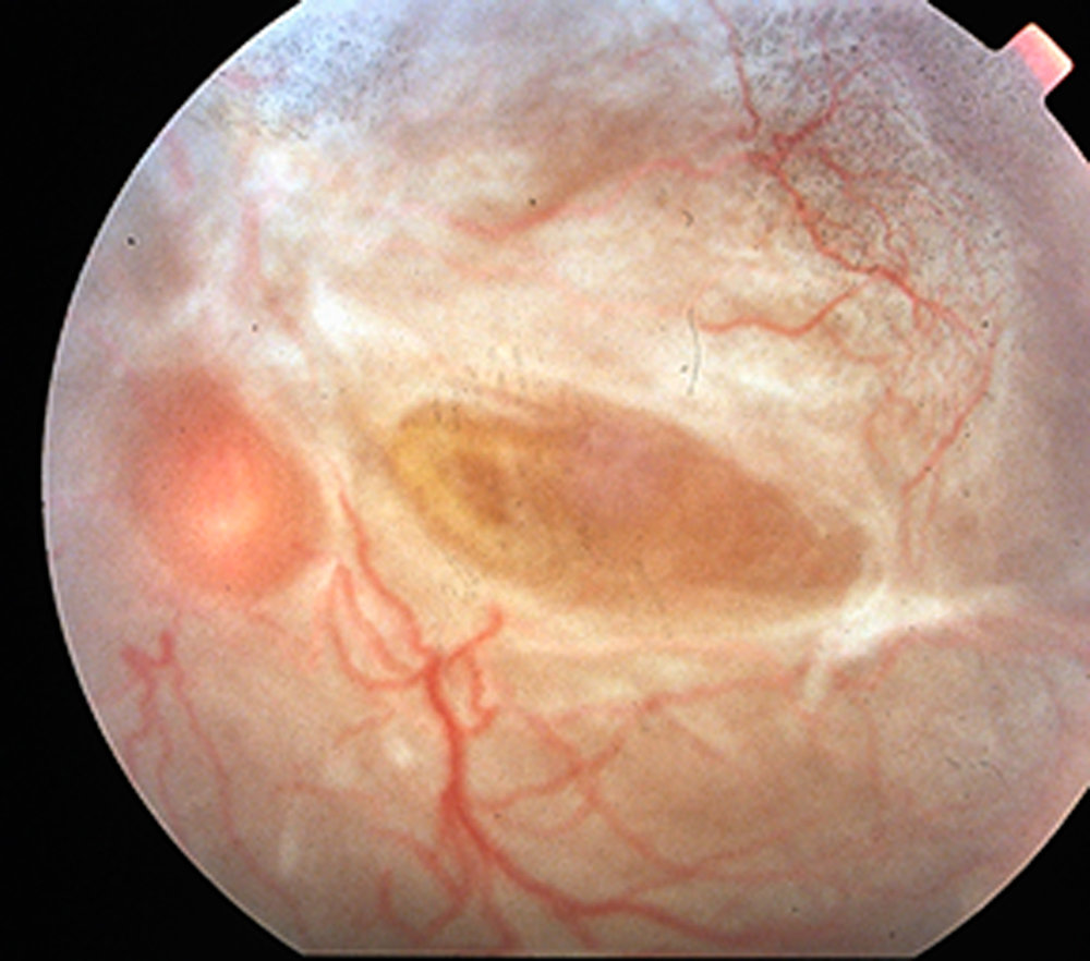 Severe diabetic traction retinal detachment