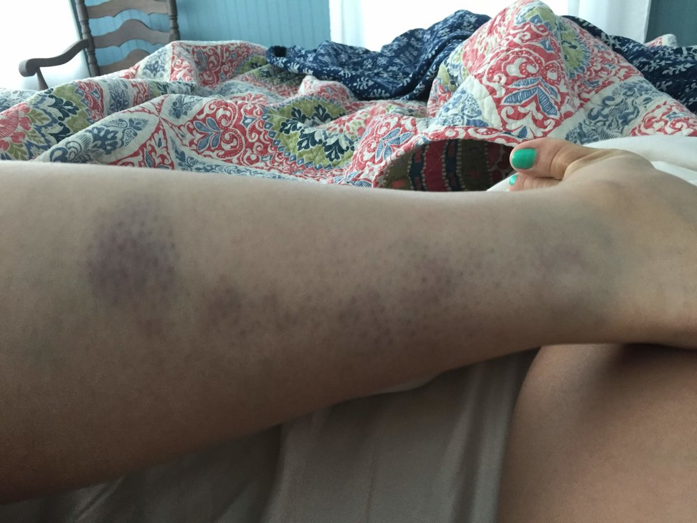 gross bruise.JPG