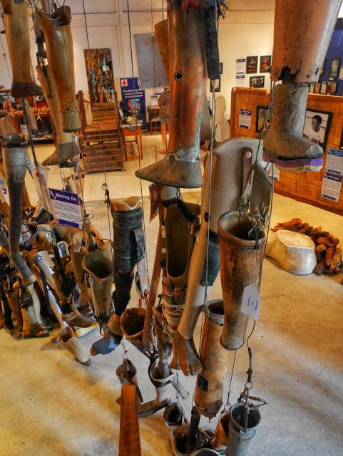 prosthetic limbs