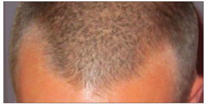 Uneven Hairline -