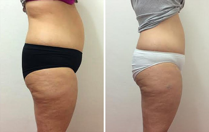 Difference in shape and a difference in skin tone noticeableon legs and firmer appearance of stomach.  Picture from Hypoxi St Ives