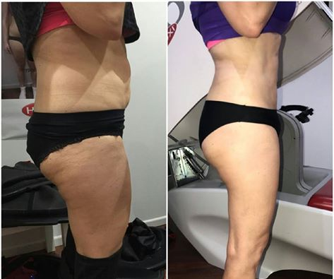 "This Hypoxi Studio Strathfield client is unstoppable!       ""I was always at the gym busting my butt and still not getting into those skinny jeans. I heard about HYPOXI and have never looked back. I've lost 34cm in those hard-to-lose problem areas so far""    Well done!"