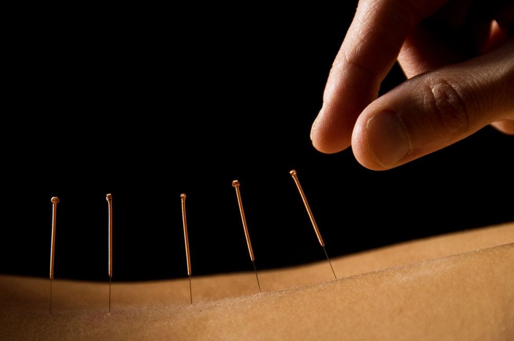 acupuncture back needles.jpg