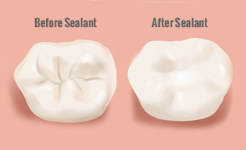dental tooth sealant treatment.jpg