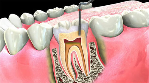 root canal.jpg