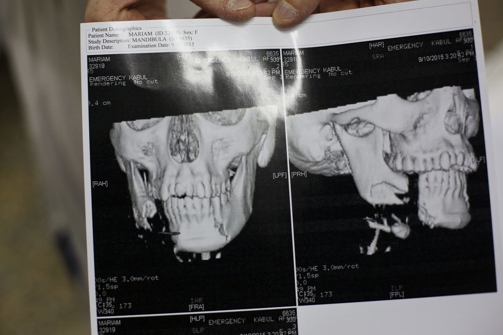A CAT scan of Maryam, 22, from Ghazni.