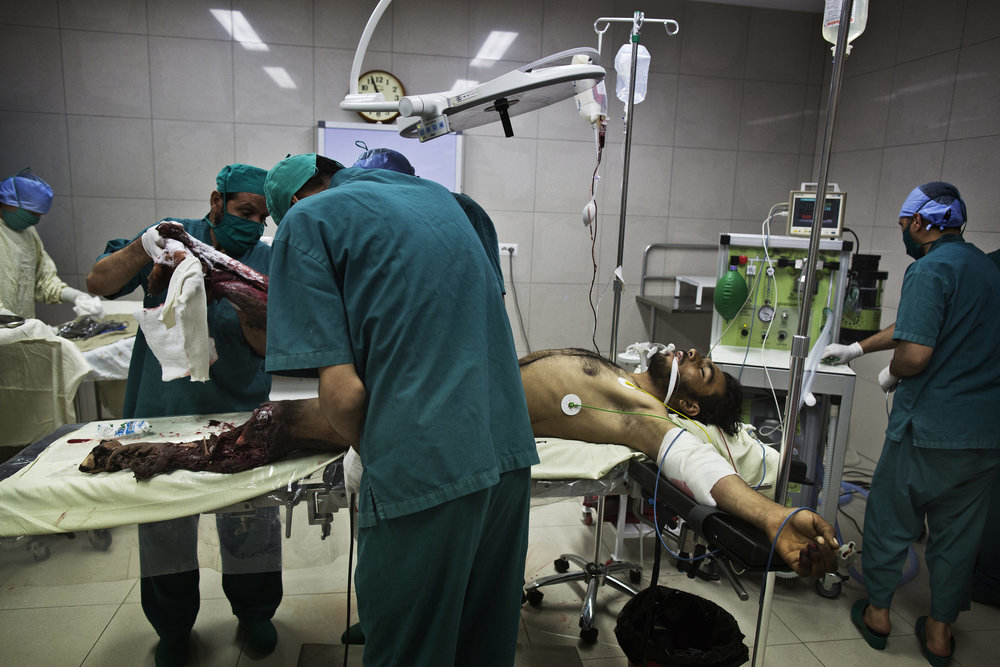 Doctors prepare to amputate the legs of Gula Jan, 35, who was the victim of an IED blast.